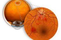 Как лечить ангиопатию сетчатки глаза