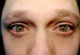 Лечение разных видов блефарита в домашних условиях