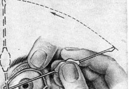 Устранение непроходимости слезного канала с помощью бужирования