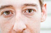 Причины и лечение колобомы глаза