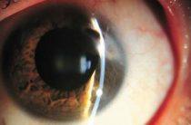 Хирургические и народные методы лечения дистрофии роговицы