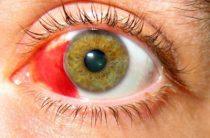 Важность срочного лечения гемофтальма или кровоизлияния в глазу