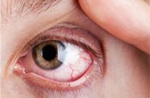 Поражение глаз герпетическим кератитом