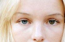 Причины и разновидности гетерохромии глаз