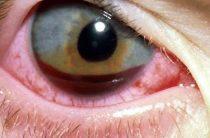 4 степени гифемы глаза и возможные осложнения