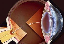 Как снизить глазное давление при глаукоме?