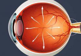 Причины и методы лечения глазного давления