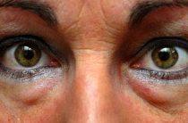 3 метода эффективного избавления от грыжи под глазами