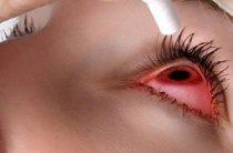 Правила первой помощи при химическом ожоге глаза