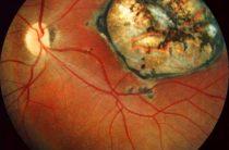 Диагностика и лечение хориоретинита глаза