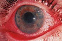 Опасность иридоциклита и методы лечения воспаления глаза
