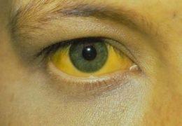 Отчего желтеют белки глаз