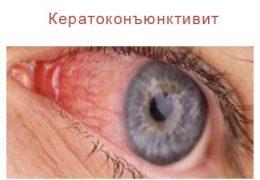 Как лечить разные виды кератоконъюнктивита