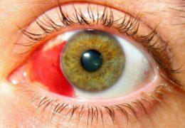 4 степени контузии глаза — оказание первой помощи