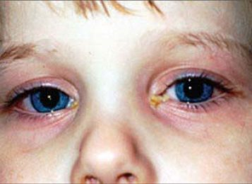 Профилактика и лечение детского конъюнктивита