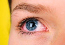 Основные причины и первая помощь при покраснении глаз