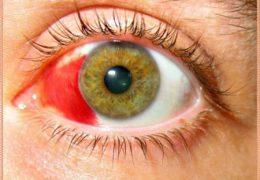 6 причин глазных кровоизлияний