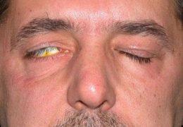 Заячий глаз — веки не полностью смыкаются
