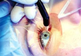 6 преимуществ лазерного лечения катаракты