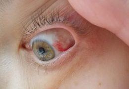 Профилактика и лечение лопнувшего сосуда в глазу