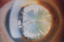 5 лучших средств от незрелой катаракты