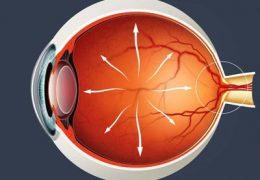 7 причин офтальмогипертензии и возможные осложнения