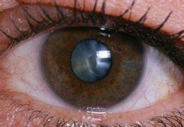 Лечение осложненной катаракты в отличии от обычной