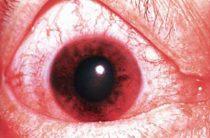Как распознать и что делать при остром приступе глаукомы