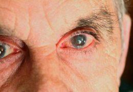 Методы лечения остроугольной глаукомы