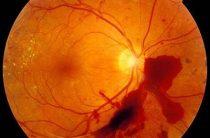 Причины и способы исцеления отека сетчатки глаза