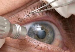 3 метода хирургического лечения отслойки сетчатки