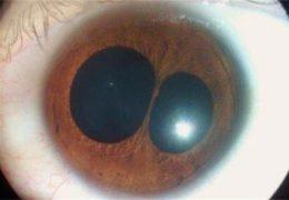 Феномен нескольких зрачков (поликории глаза)