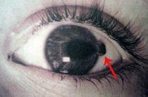 Как действовать при повреждении роговицы глаза