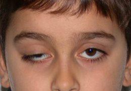 Методы лечения птоза верхнего века у детей и взрослых