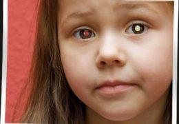 4 метода лечения и симптомы ретинобластомы глаза