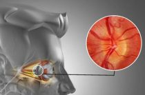 Опасность и прогноз при ретробульбарном неврите зрительного нерва
