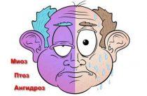 3 уровня нейронных нарушений при синдроме Горнера