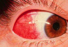 Опасность субконъюнктивального кровоизлияния