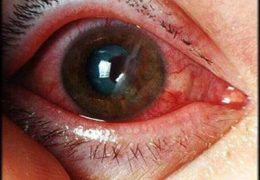 Как действовать при травматической катаракте