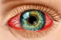 15 способов борьбы с вирусным кератитом
