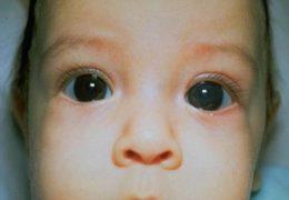 Виды и симптомы врожденной глаукомы