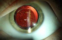 6 типов врожденной катаракты и их особенности