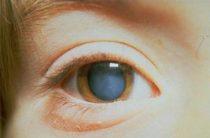4 вида вторичной катаракты и прогноз
