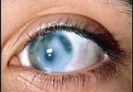 5 степеней вторичной глаукомы