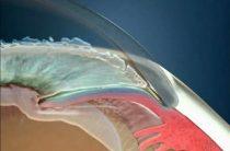 Медикаментозное и хирургическое лечение закрытоугольной глаукомы