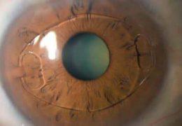 Внедрение искусственного хрусталика глаза